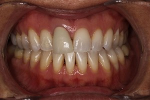 Anterior-Crown-and-lower-esthetics-before