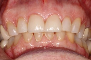 Anterior-crowns-after