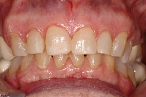 Anterior-crowns-before