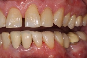 Front-crowns-lower-wear-after