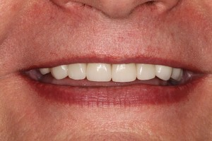 Restoring-the-Smile-after