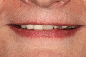 Restoring-the-Smile-before