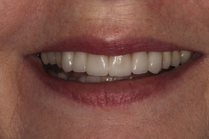 Smile-restoration-after