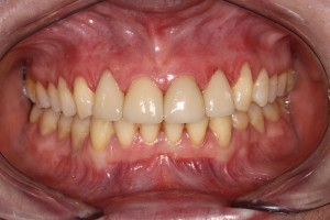 Spaces-between-front-teeth-after