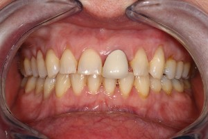 Spaces-between-front-teeth-before